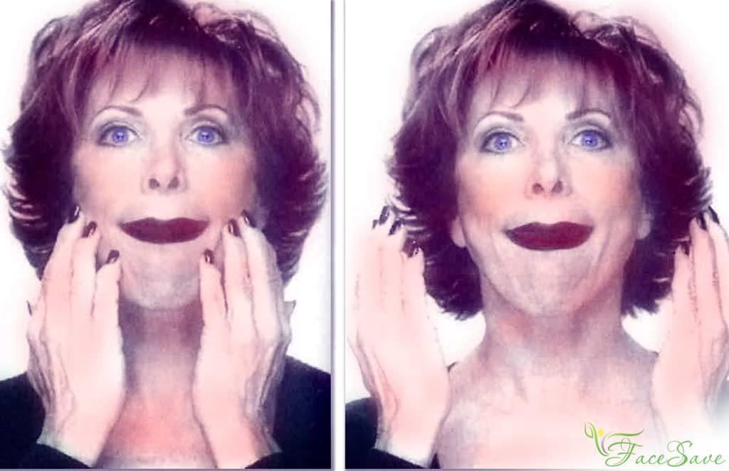 Кэрол Маджио расширение лица