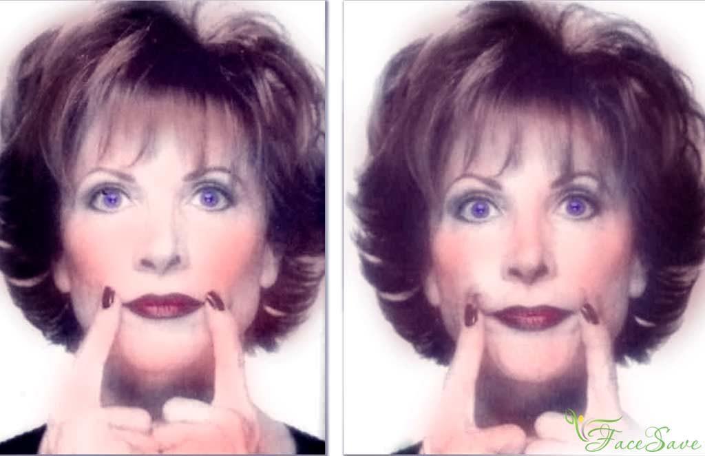 Кэрол Маджио уголки губ