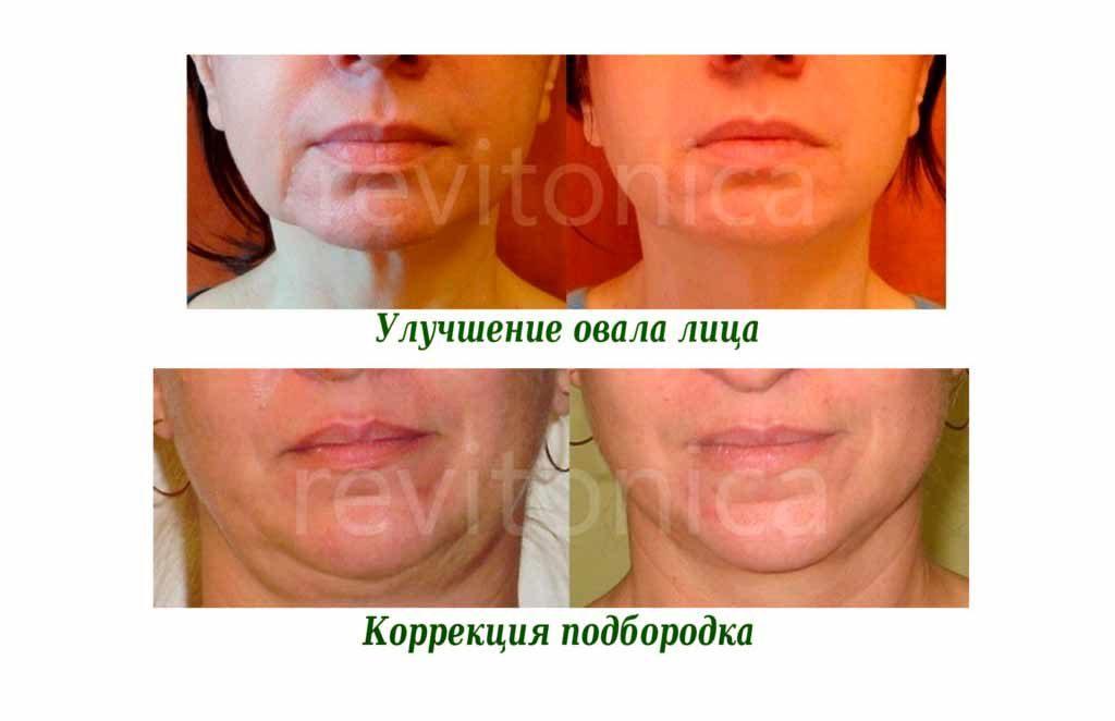 фото до и после 2