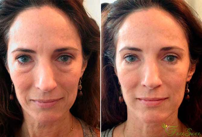 Фото до и после испанского массажа