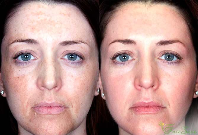 Фото до и после желтого пилинга