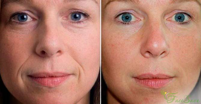 фото до и после буккального массажа