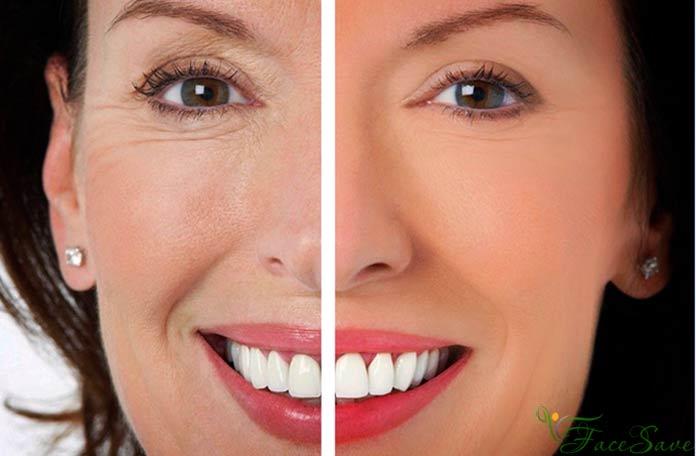 фото до и после, отзывы