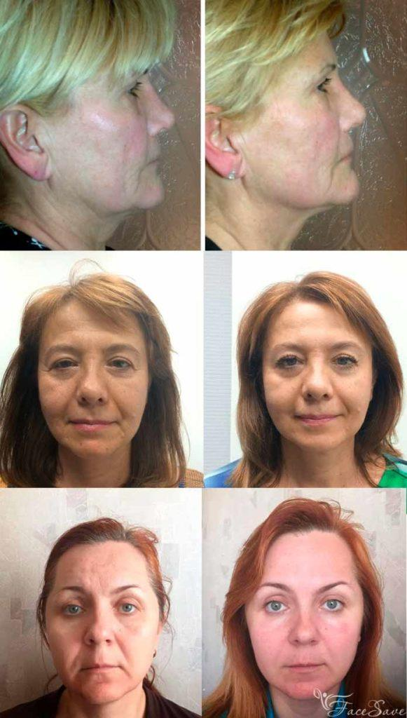 lpg фото до и после