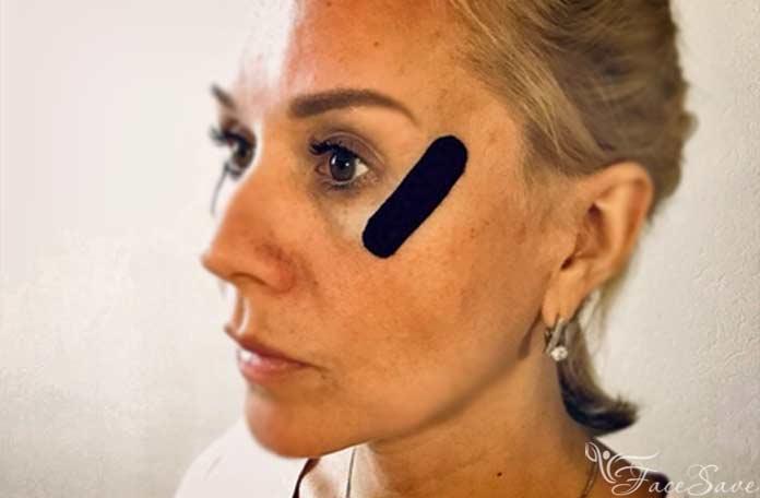 Тейпирование от гусиных лапок вокруг глаз