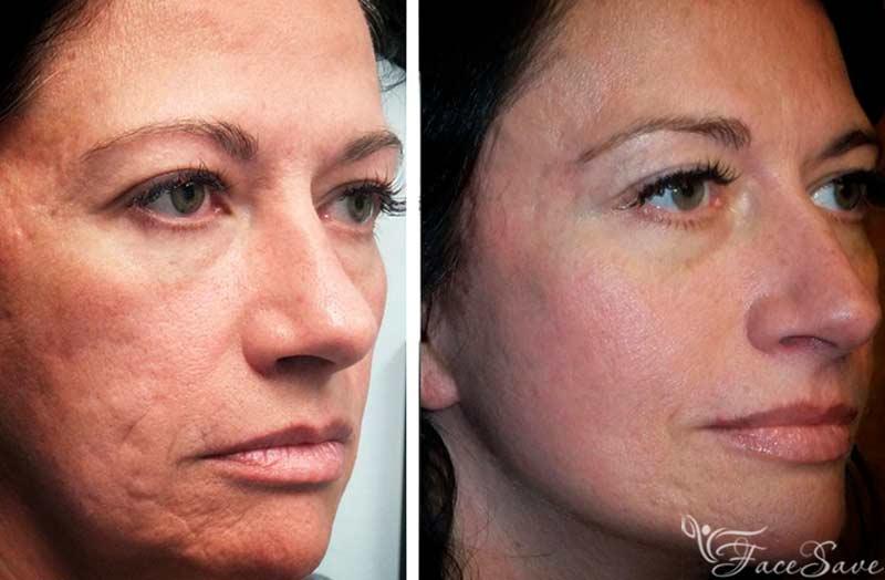 лазерная шлифовка лица фото до и после