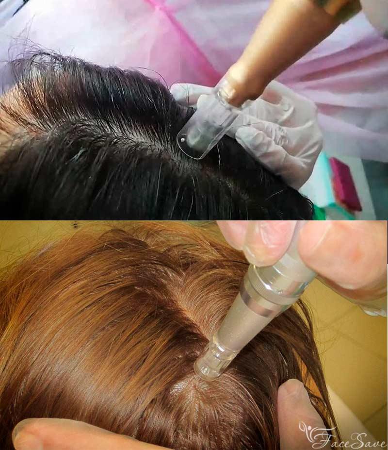 Микронидлинг на коже головы